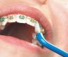 Зубные ершики для брекетов – особенности